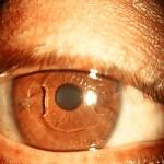 Cirugia-de-Alta-Miopia