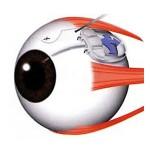 Cirugia-de-Glaucoma