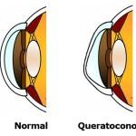 Cirugia-de-Queratocono