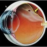 desprendimiento-de-la-retina